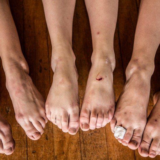 Slidte fødder